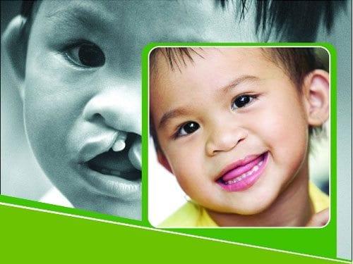 mổ sứt môi, hở hàm ếch cho trẻ em
