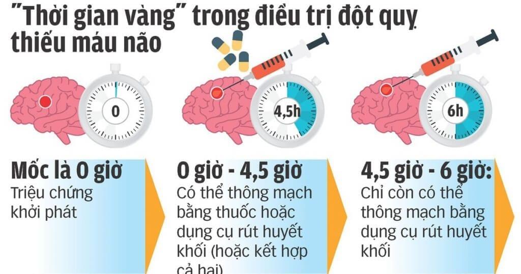 thời gian vàng trong điều trị đột quỵ não